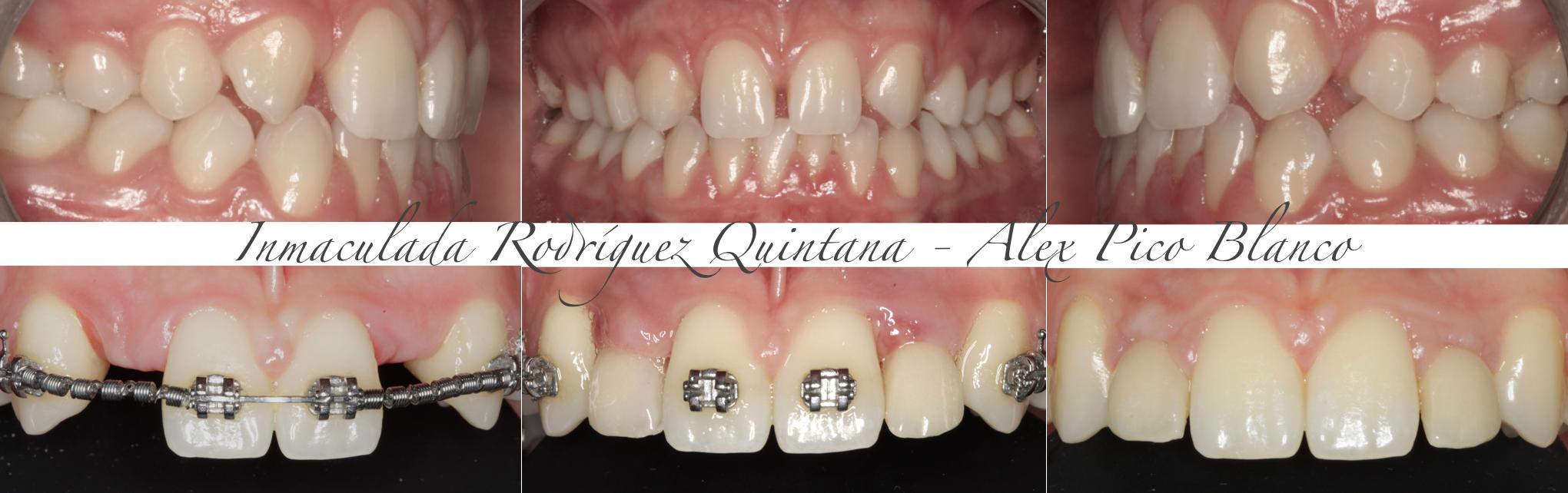 agenesia permanente de la dentición