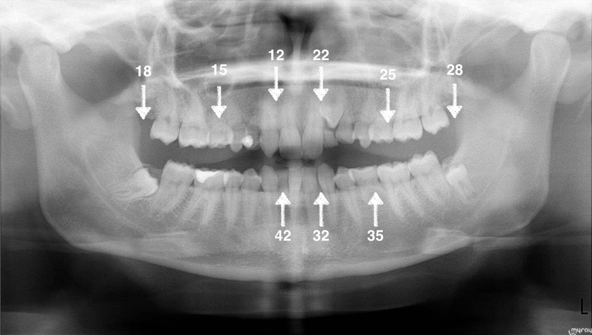 agenesia de los dientes premolares